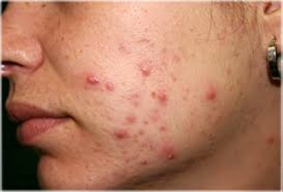 TOP 10 Home Remedies to treat Pimples and Acne very fast