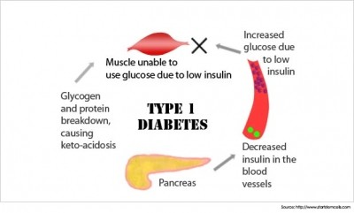Causes of Diabetes: Pg3(Symptoms, Treatments and Videos)