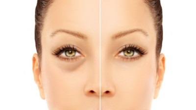 Dark circles: Home remedies for dark circles and puffy eyes